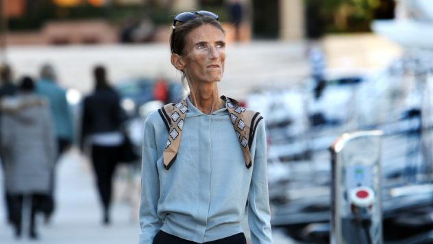 Valeria Levitin is a walking skeleton after years of anorexia reduced her weight to just four stone
